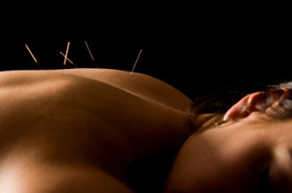 Outr prices for acupuncture in Canterbury